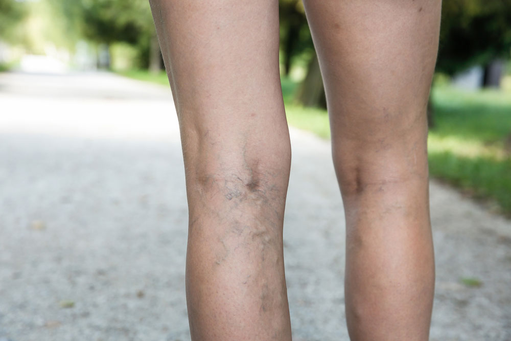 Varicose Vein Treatment in Los Angeles