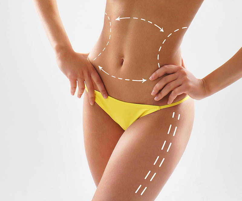 Is Liposuccion in Los Angeles Right for You