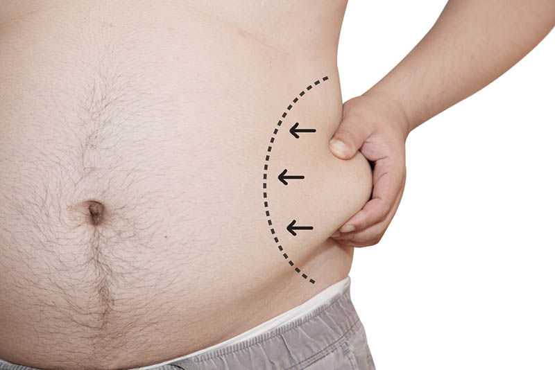 Liposuction VASER in Los Angeles