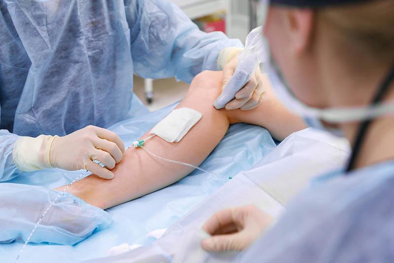 Get Varicose Vein Treatment