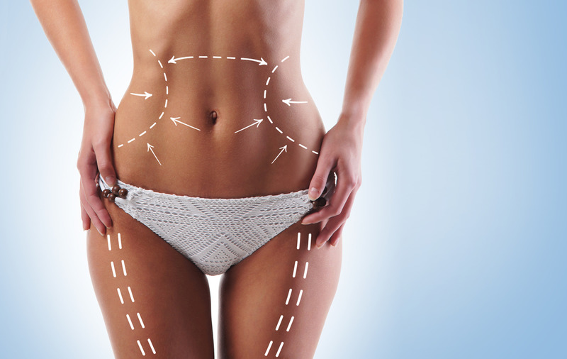 Remove Unwanted Fat with the Best Liposuction in Los Angeles