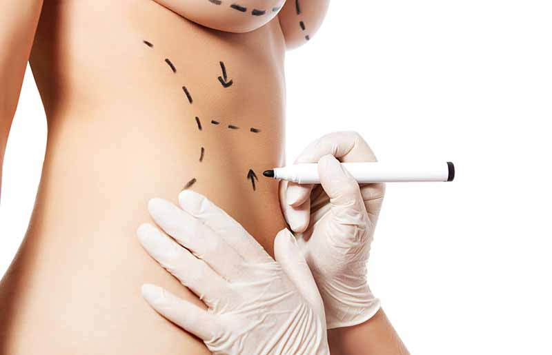 cosmetic surgery in Los Angeles -
