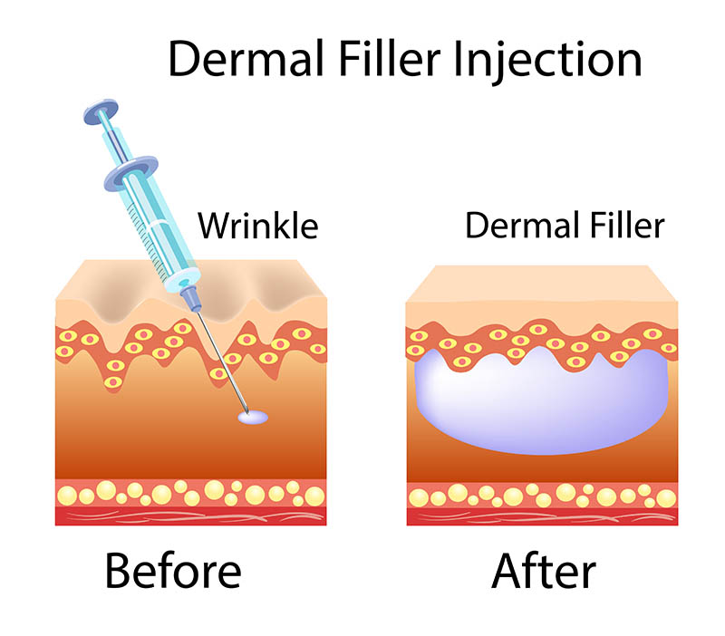 Cosmetic Fillers in Los Angeles