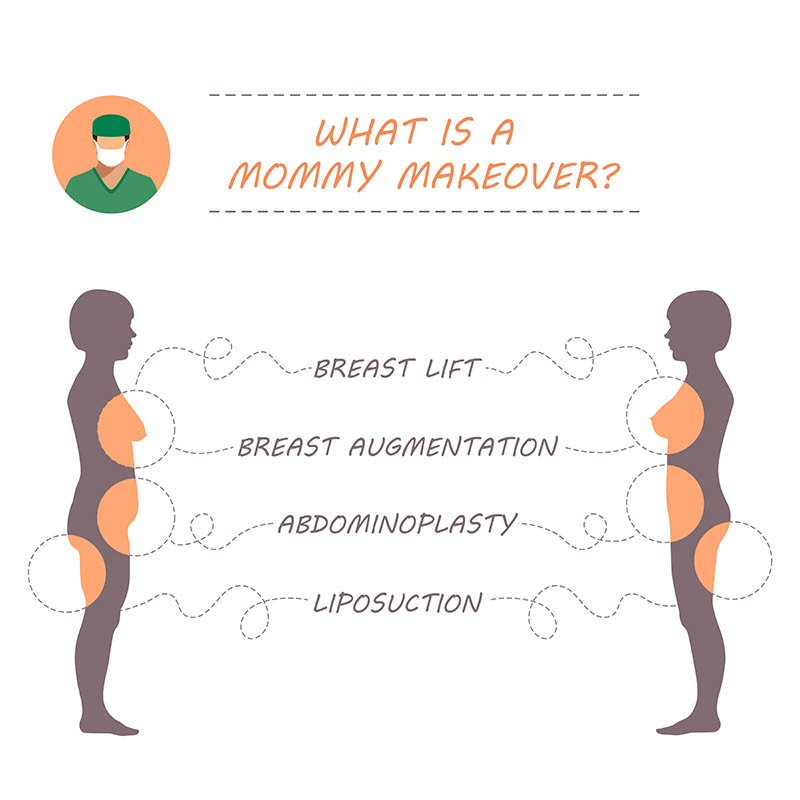 Cosmetic Surgery in Venice for a Mommy Makeover