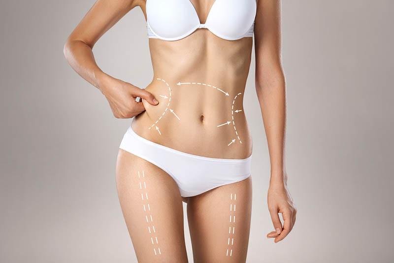 Liposuction HD In Los Angeles